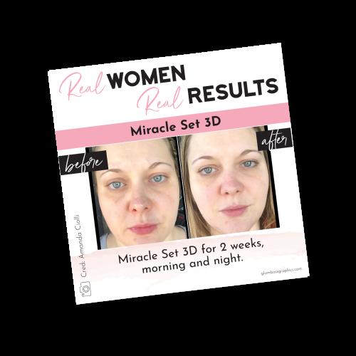 Real Results – 3D Miracle Set – Before & After – Amanda Ciolli