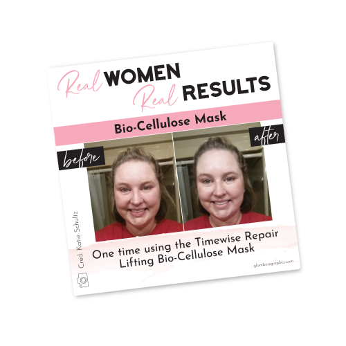Real Results – Bio-Cellulose Mask – Before & After – Katie Schultz