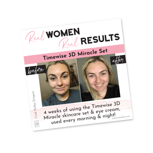 Real Results – 3D Miracle Set – Before & After – Kelley Dingens