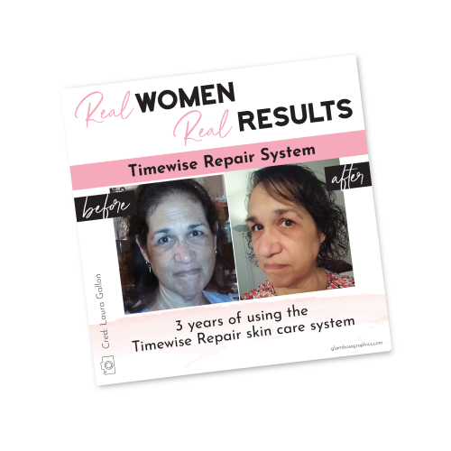 Real Results – Timewise Repair – Before & After – Laura Gollon