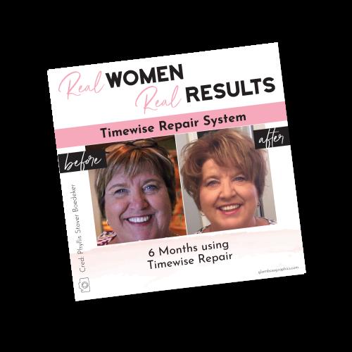 Real Results – Timewise Repair – Before & After – Phyllis Boedeker